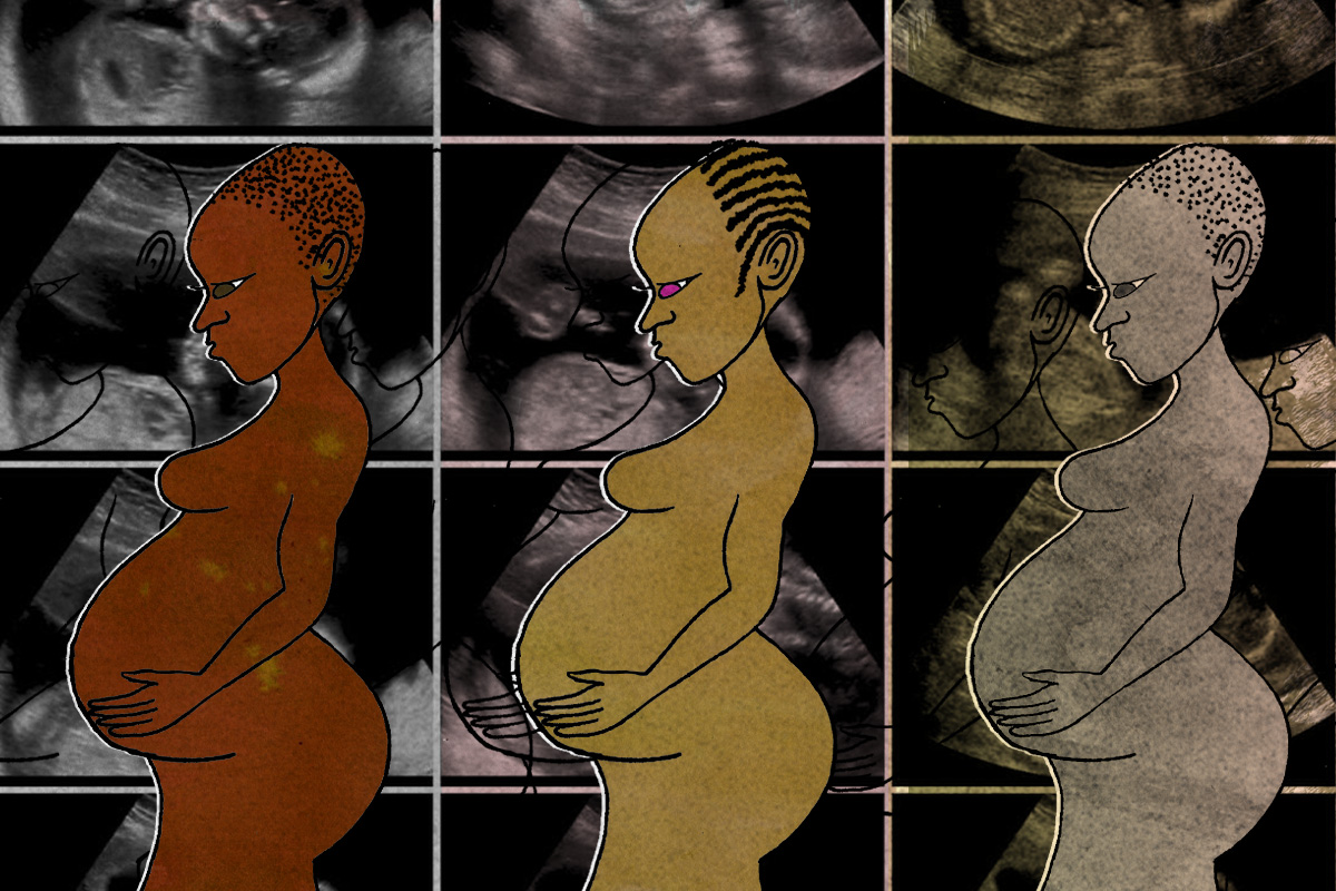 Learning the African history of caesarean sections will help us better challenge stigma